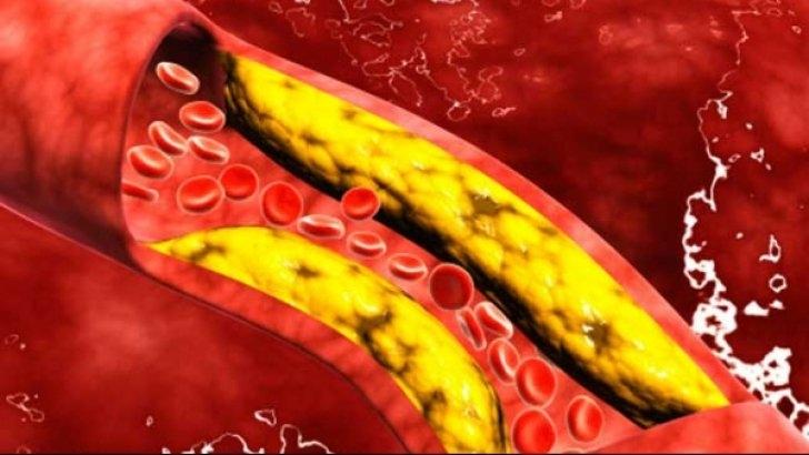 Cum îţi poţi curăţa vasele de sânge de colesterol în doar 40 de zile