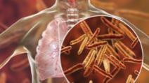 Pacienții cu forme grave de tuberculoză vor beneficia de concediu medical pe toată perioada tratametului