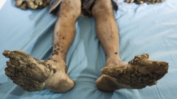 Coșmar pentru omul copac. După operație, i-au dat vestea șoc! Medicii, terifiați de ce au descoperit