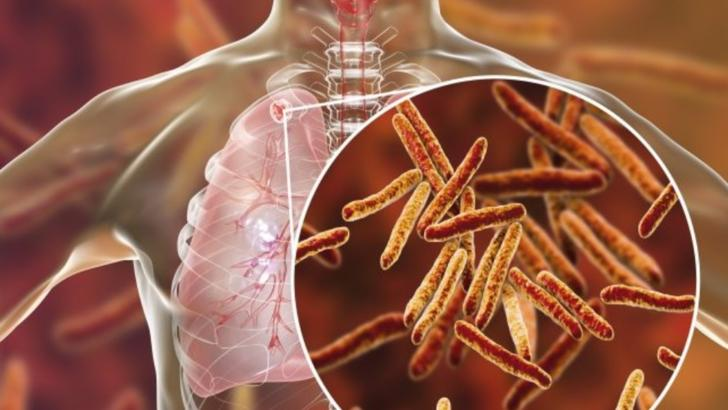 Pacientii cu forme grave de tuberculoza vor beneficia de concediu medical pe toata perioada tratametului