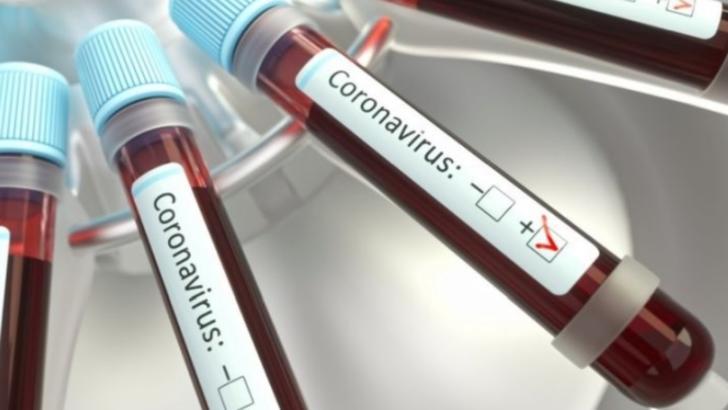Haos la Suceava: peste 100 de medici trebuie sa refaca testele pentru coronavirus