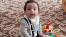 S-a născut cu o inimă pe frunte. Când a împlinit 4 ani, a șocat! Teribil ce s-a întâmplat cu copilul