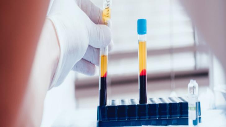 Apel disperat al aparținătorilor bolnavilor de COVID-19 către persoanele vindecate: Donați plasmă!