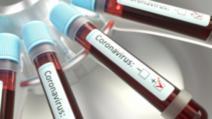 Noi decese cauzate de infecție cu coronavirus, în România. Bilanțul oficial a urcat la 1124 de victime