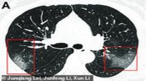 Cum arată plămânii unei persoane infectate cu coronavirus. Radiografia care a uimit lumea medicală
