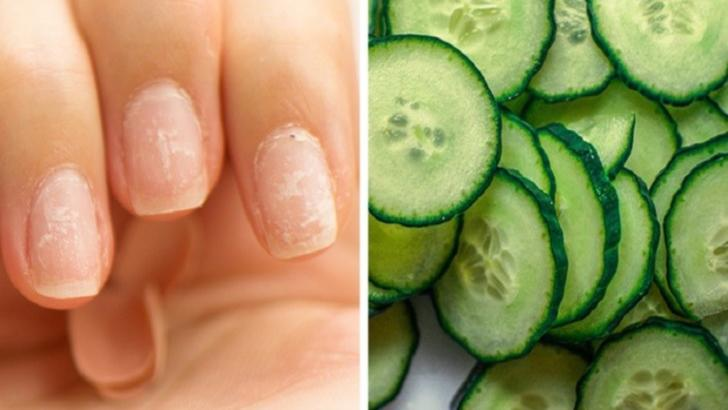8 remedii naturale care pot face minuni pentru unghiile tale