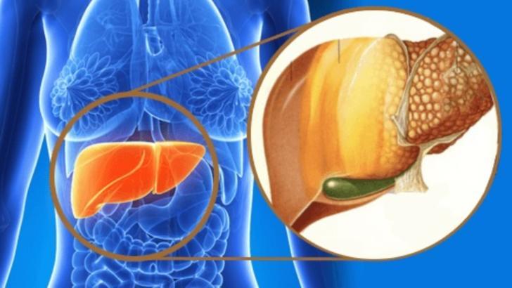 Ce este boala ficatului gras și cum se manifestă