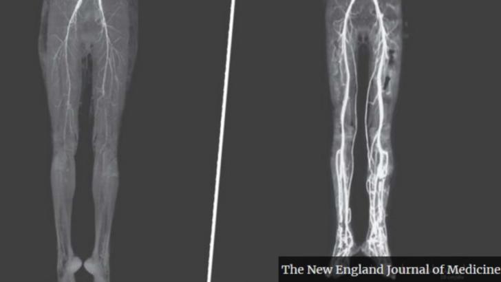 """S-a dus la doctor cu dureri și arsuri în picioare, dar a primit un diagnostic tulburător: """"boala focului sfânt"""""""