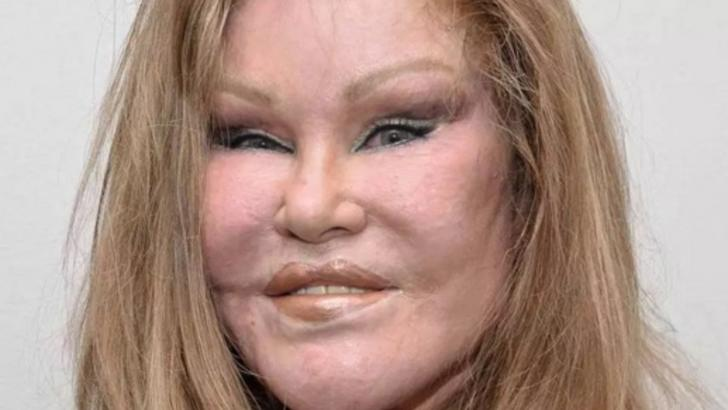 Femeia care a visat să aibă un chip de felină. Operațiile estetice au măcelărit-o. Ireal!