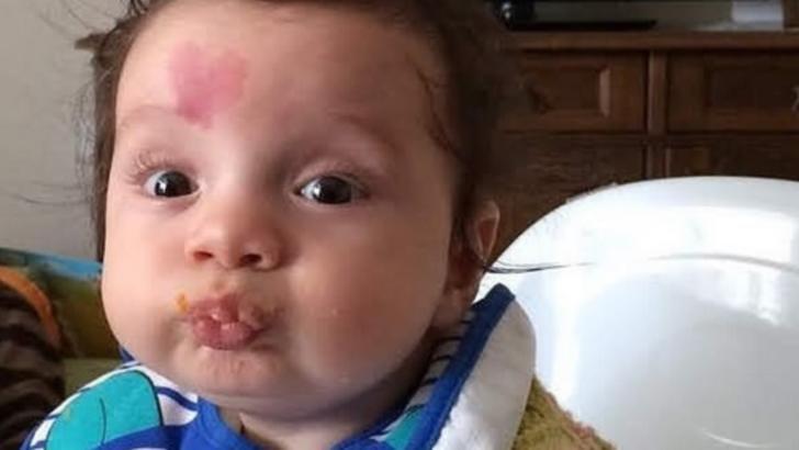 S-a născut cu o inimă pe frunte. La 4 ani, a uimit! Ce s-a întâmplat cu copilul