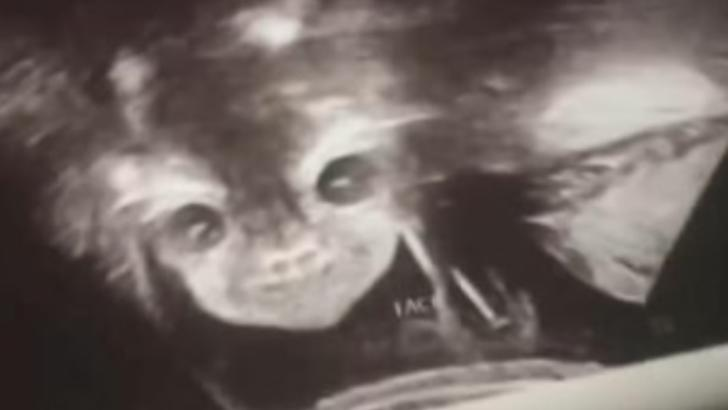 """După ecografie, a împietrit: """"E copilul diavolului! Mi se uită direct în suflet!"""" Ce purta în pântec"""