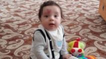 S-a născut cu o inimă pe frunte. La 4 ani, a șocat! Teribil ce s-a întâmplat cu copilul