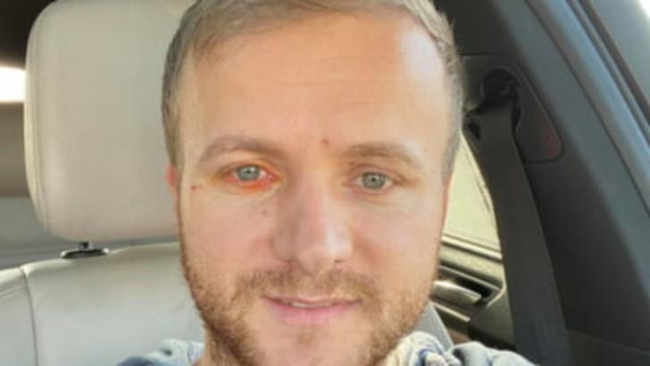 Activistul de mediu Daniel Bodnar, rănit grav într-un accident rutier. Bărbatul nu-și mai simte picioarele
