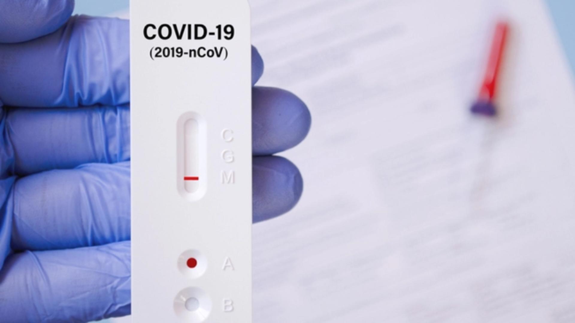 Teste rapide antigen pentru depistarea COVID