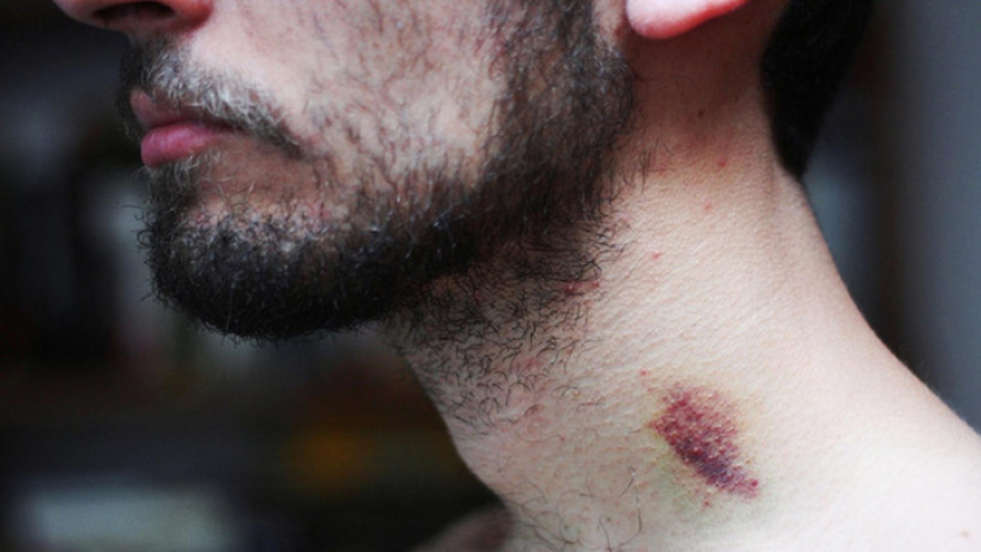 Un tânăr de 17 ani a murit după ce a fost mușcat de gât