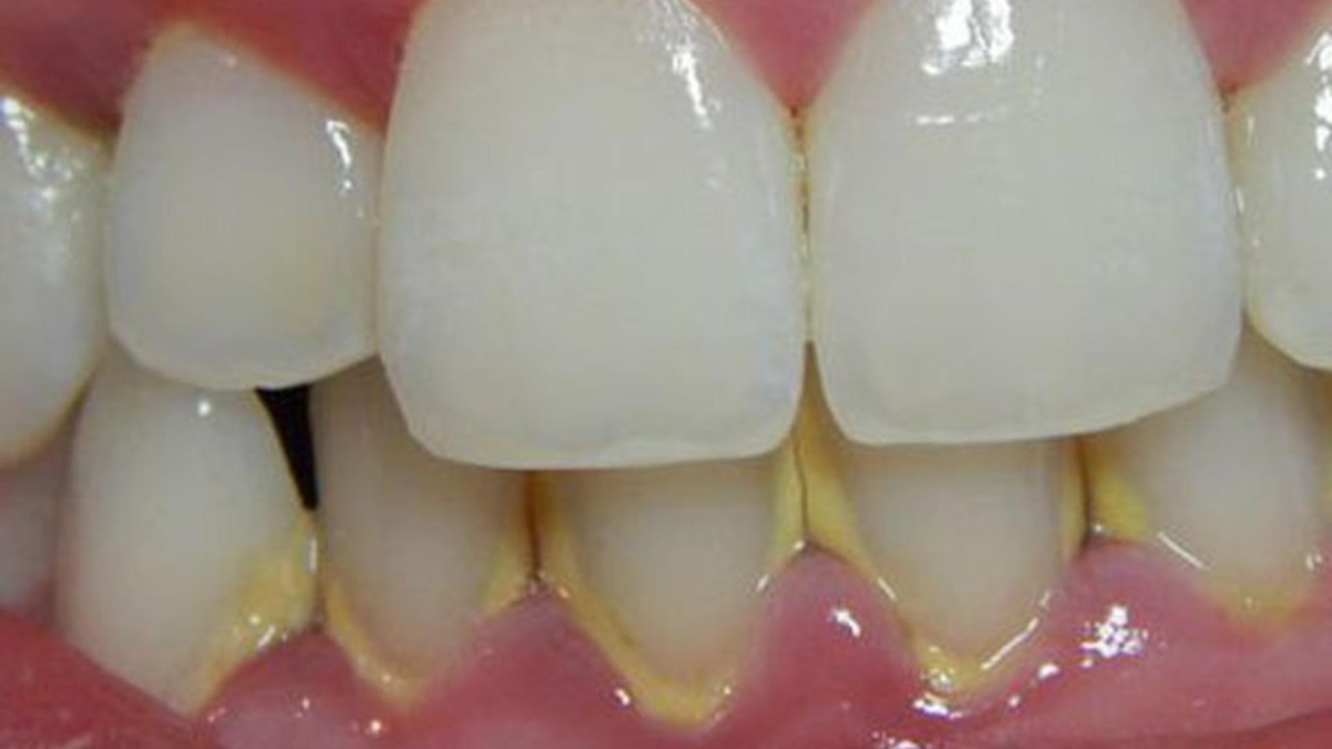 Cu o soluție simplă, pe care o poți prepara în casă, scapi de tartrul de pe dinți