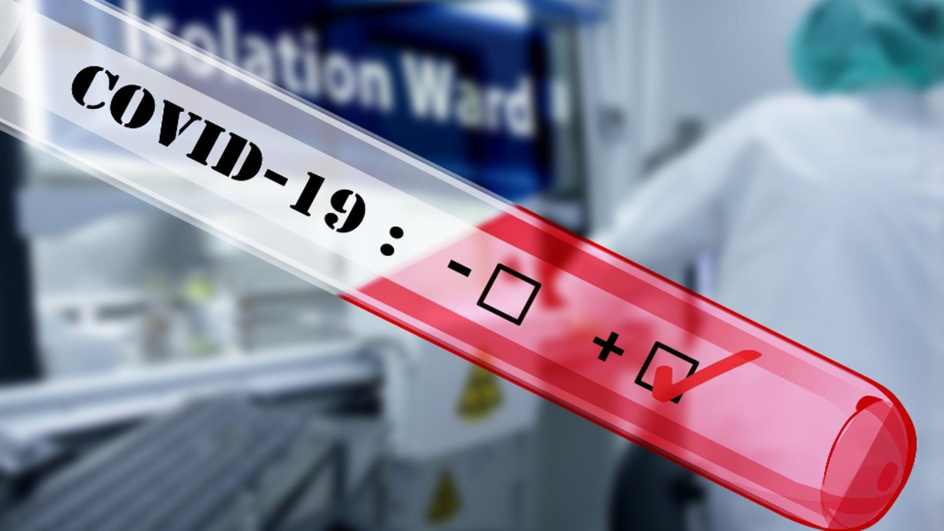 Laboratoarele medicale, profit urias in pandemie. Sursa foto: Pixabay